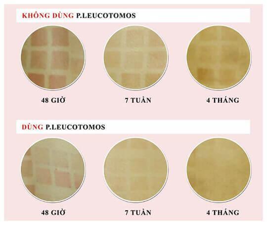 P. Leucotomos chống nắng từ bên trong